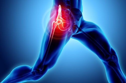 Piriformis Syndrome explained. SSEP professional Exercise and Sports Physiologists in Sydney NSW