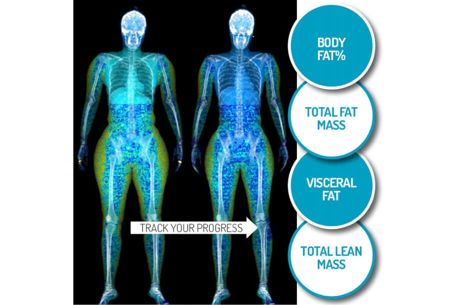 How to measure body fat using the DEXA Scan technology at Sydney Sports and Exercise Physiology